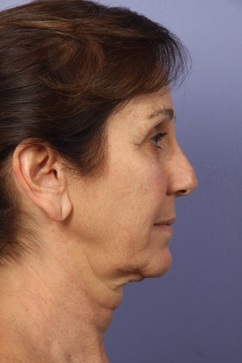 53 yr old Face and Necklift