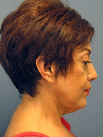 Neck Lift, Platysmaplasty