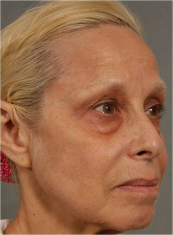 60 Year Old Female treated for under eye puffiness, sagging cheeks and frown lines non surgically
