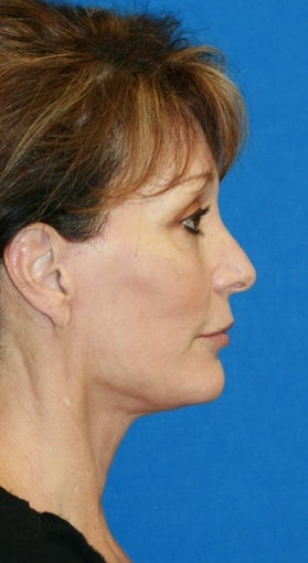 Facelift with Extended Necklift and Upper Blepharoplasty