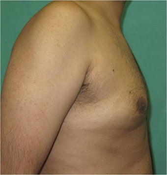 29 Year Old Male Treated for Gynecomastia with Smart Lipo Triplex