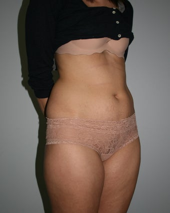 Mini-Abdominoplasty