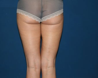 Liposuction of the Hips and Thighs