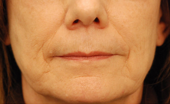 Restylane injectable filler