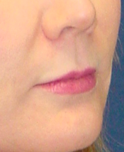 Lip Augmentation with lip lift