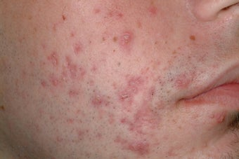 Acne treatment with Accutane