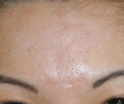 Before and After Acne Scar Treatment with Subcision and cO2 Laser Resurfacing