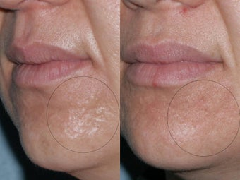 Fraxel Repair for acne scars