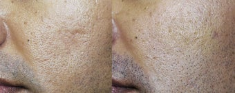 Acne Scar Treated with Sculptra