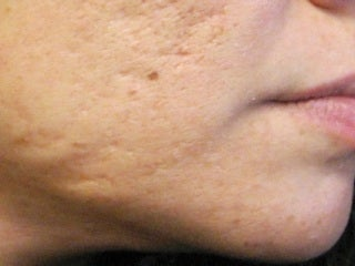 Severe, Deep Acne Scars with Punch Elevation