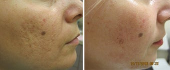 Fractional Resurfacing Acne Scars