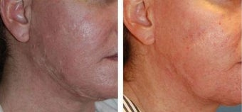Acne Scar Treatment, Excision, Co2 Laser Resurfacing