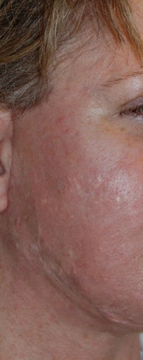 Before and After Multiple Excisions, Fat Grafting and Co2 Laser Active Fx Resurfacing Acne Scar Treatment
