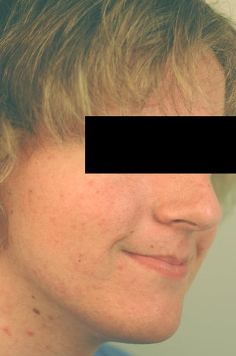 Huntington Beach Acne Treatment Before and After