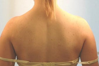 Laser Back Acne Treatment