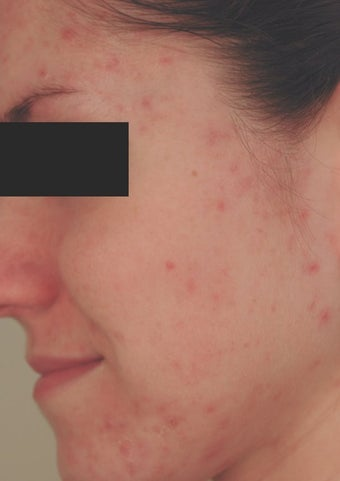 Hormonal Acne Treatment in Los Angeles