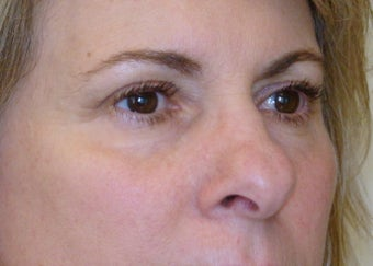 Active & Deep FX Laser Resurfacing