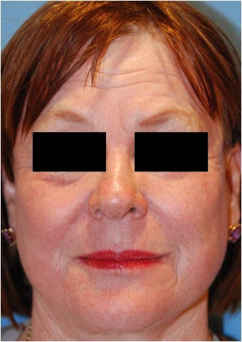 CO2 Laser Resurfacing ~ ActiveFX & DeepFX
