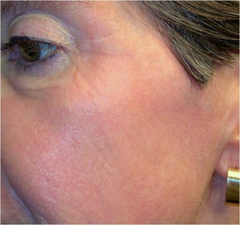 CO2 Laser Resurfacing ~ Active & DeepFX