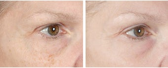 Active FX Fractional Laser Resurfacing