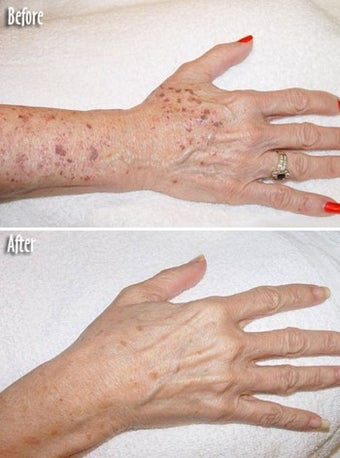 Age spots and sun damage IPL treatment