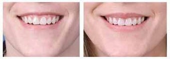 Alloderm facial implants for lip augmentation
