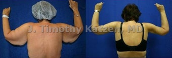 Before and after picture arm lift arm reduction after massive weight loss gastric bypass female