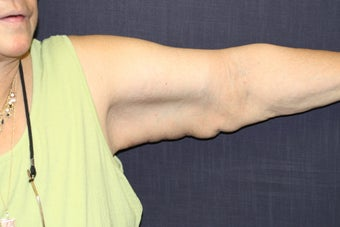 Brachioplasty (Arm Lift)
