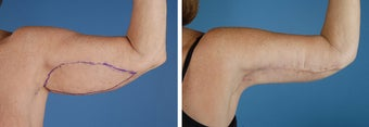 Arm Lift (Brachioplasty)