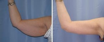 46 years old / brachioplasty (arm lift)