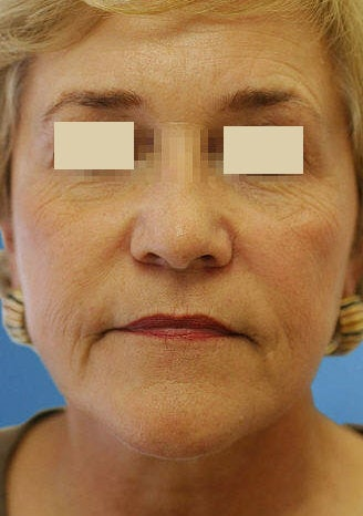 Artefill for NasoLabial Folds