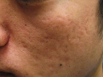 Artefill treatment of Acne Scars
