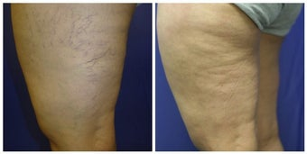 spider vein sclerotherapy with asclera