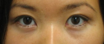 Double eyelid surgery with CO2 laser