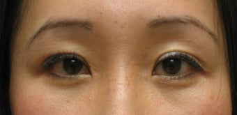 Upper and lower blepharoplasty by CO2 laser