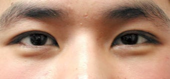 Asian blepharoplasty by incisional technique