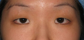 Double eyelid surgery by CO2 laser