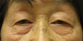 Upper and lower blepharoplasty by laser