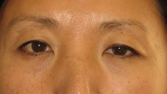 Asian Blepharoplasty to remove eye bags