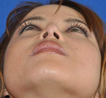 Rhinoplasty-Nostril shaping