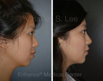 Blepharoplasty, Rhinoplasty, Chin Augmentation