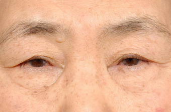 Blepharoplasty and ptosis repair