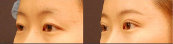 Double Eyelid Surgery Non-Incision