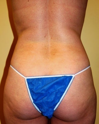 Body Jet (water assisted) liposuction