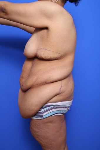 Body Lift with Panniculectomy