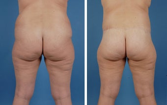 Lower Body Lift and Liposuction of Lateral Thighs