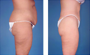 Central body lift with liposuction age 38