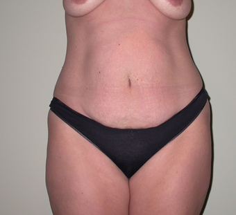 Breast lift, abdominoplasty, liposuction