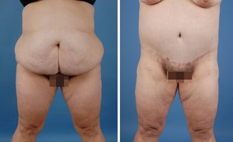 Bilateral Lower Body Lift and Liposuction
