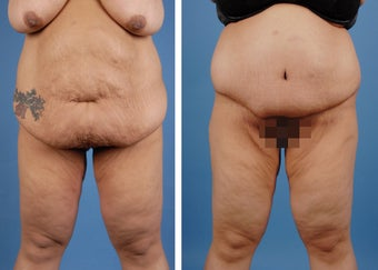 Lower Body Lift and Extended Tummy Tuck
